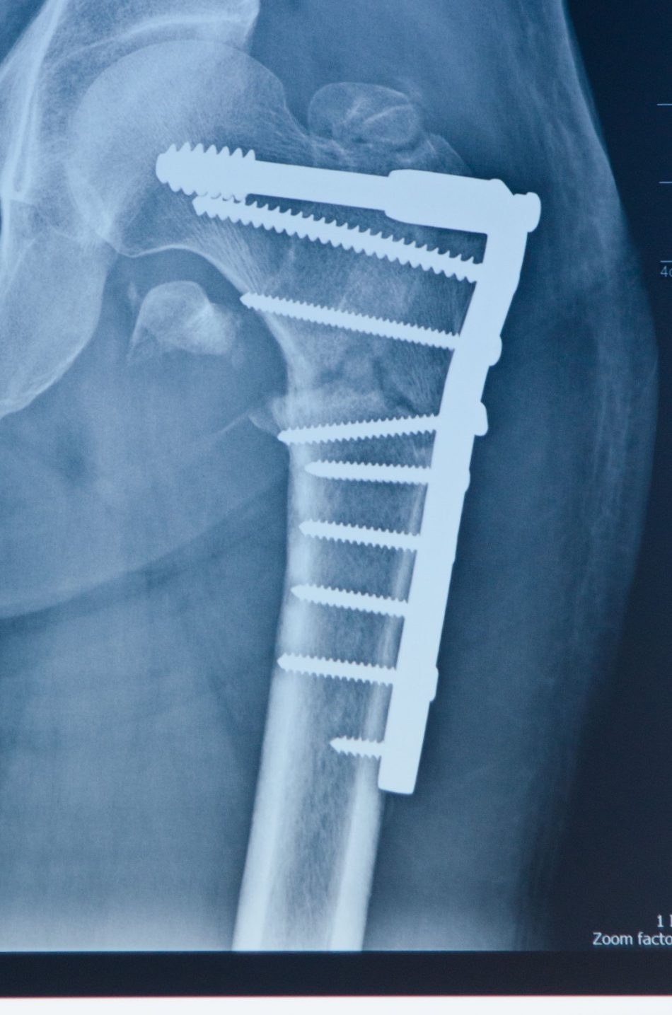 X Ray at 9 weeks